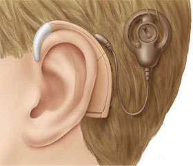 Cochlear implant sound processor